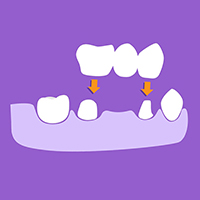Dental crowns and bridges Costa Rica