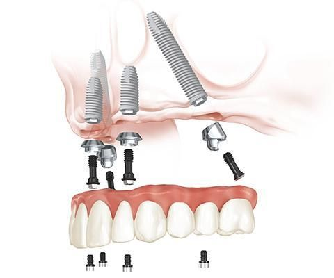 All on four dental implants - upper jaw